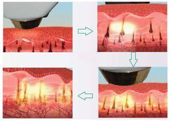 Zasada działania lasera diodowego